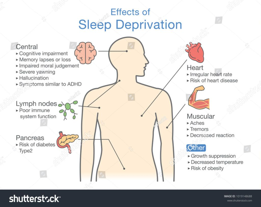 stock vector diagram of effects of sleep deprivation illustration about disease diagnosis 1019148688