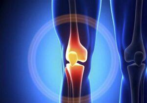 All about Knee Pain