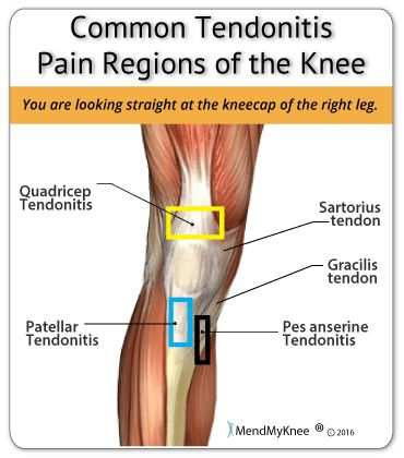 Knee Pain - Tendonitis
