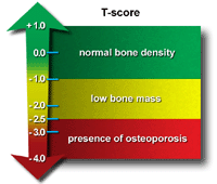 Osteoporosis: The Facts - Diagnosis