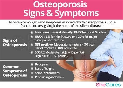 Osteoporosis: The Facts