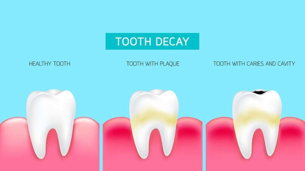 All about Dental Care - Tooth Decay