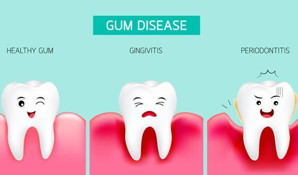 All about Dental Care - gum disease