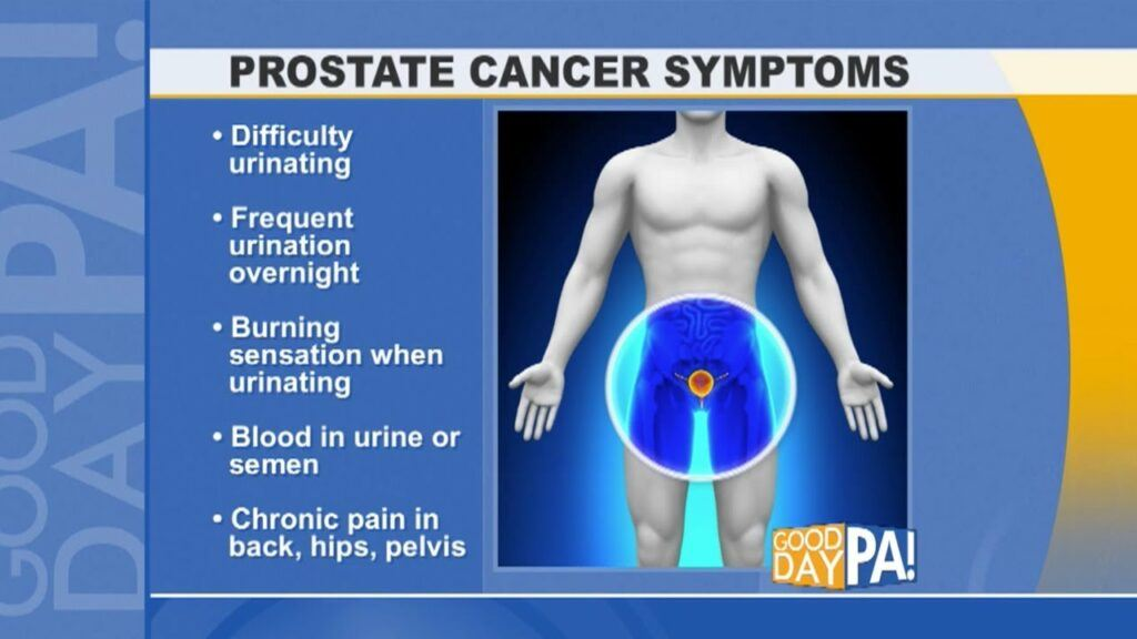Prostate Cancer: the facts -Prostate Cancer Symptoms