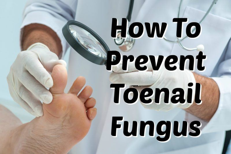 The Toenail fungus - Toenail Fungus Prevention