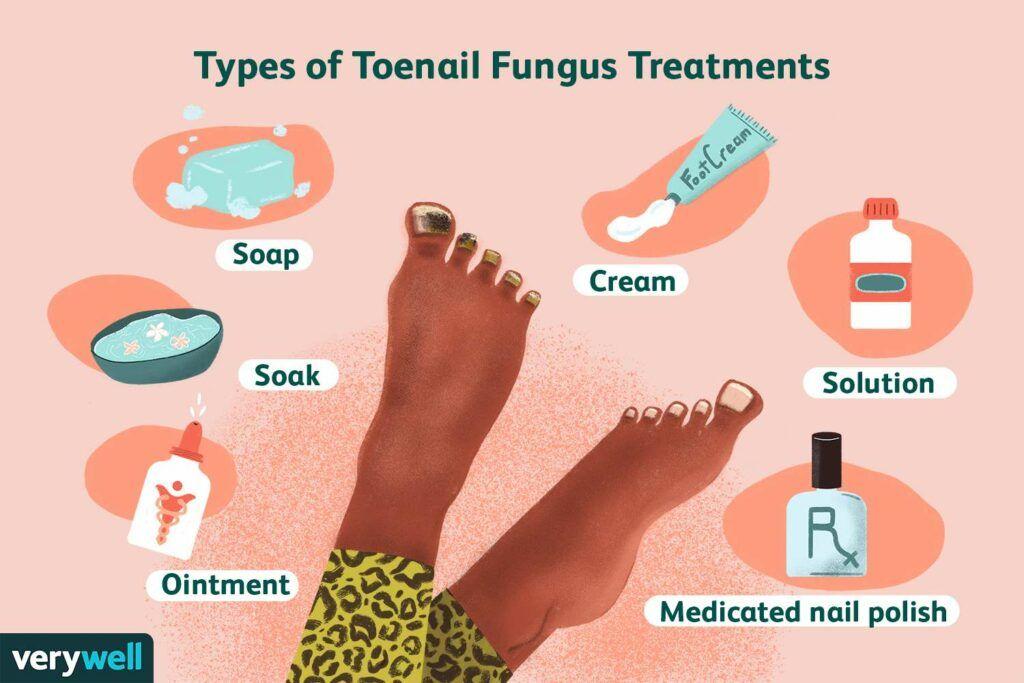 The Toenail Fungus-Toenail Fungus Treatment