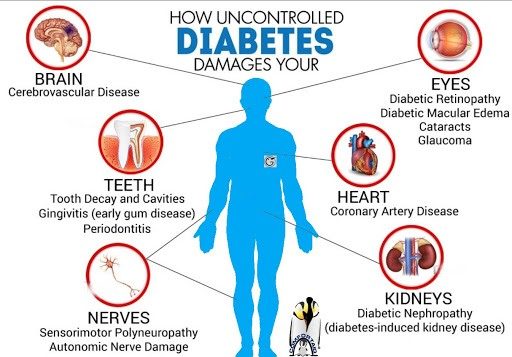 What is Diabetes About - Diabetes Complications