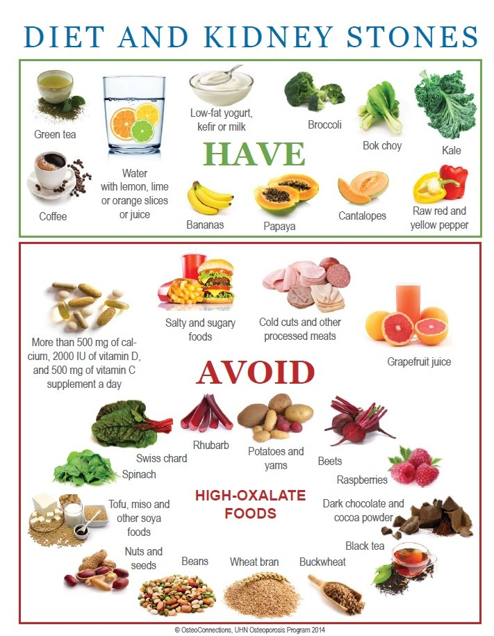 All About Kidney Stones - Diet