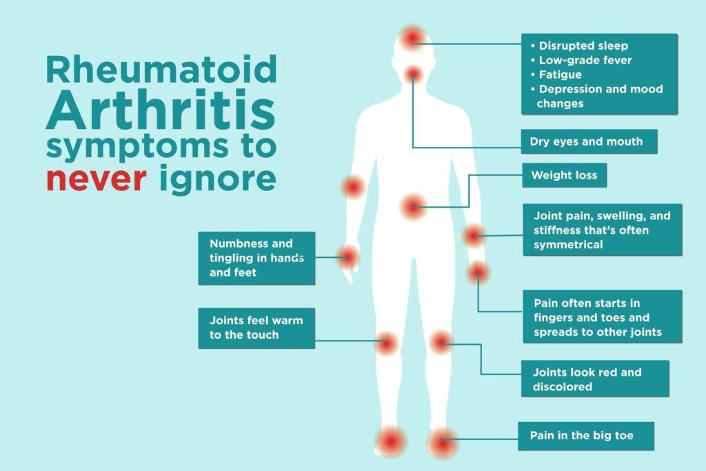 Info about Rheumatoid Arthritis - Arthritis Symptoms