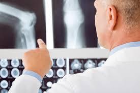 Info about Rheumatoid Arthritis - Treating Rheumatoid Arthritis