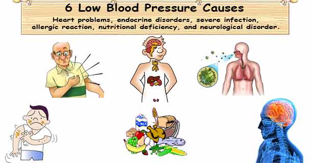 The Facts about Low Blood Pressure - Low Blood Pressure Causes